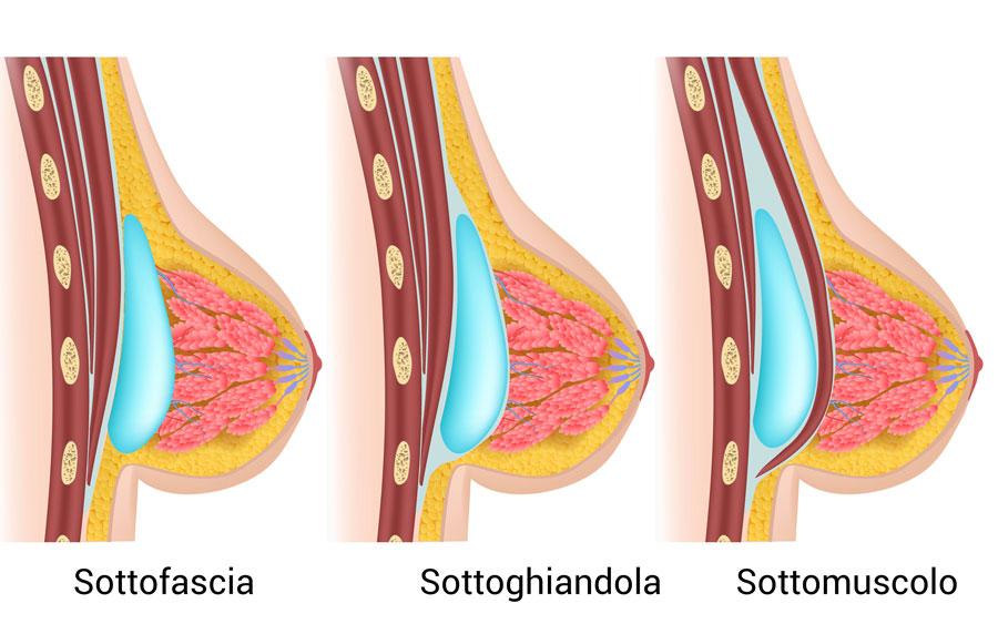 Zone di inserimento della protesi seno